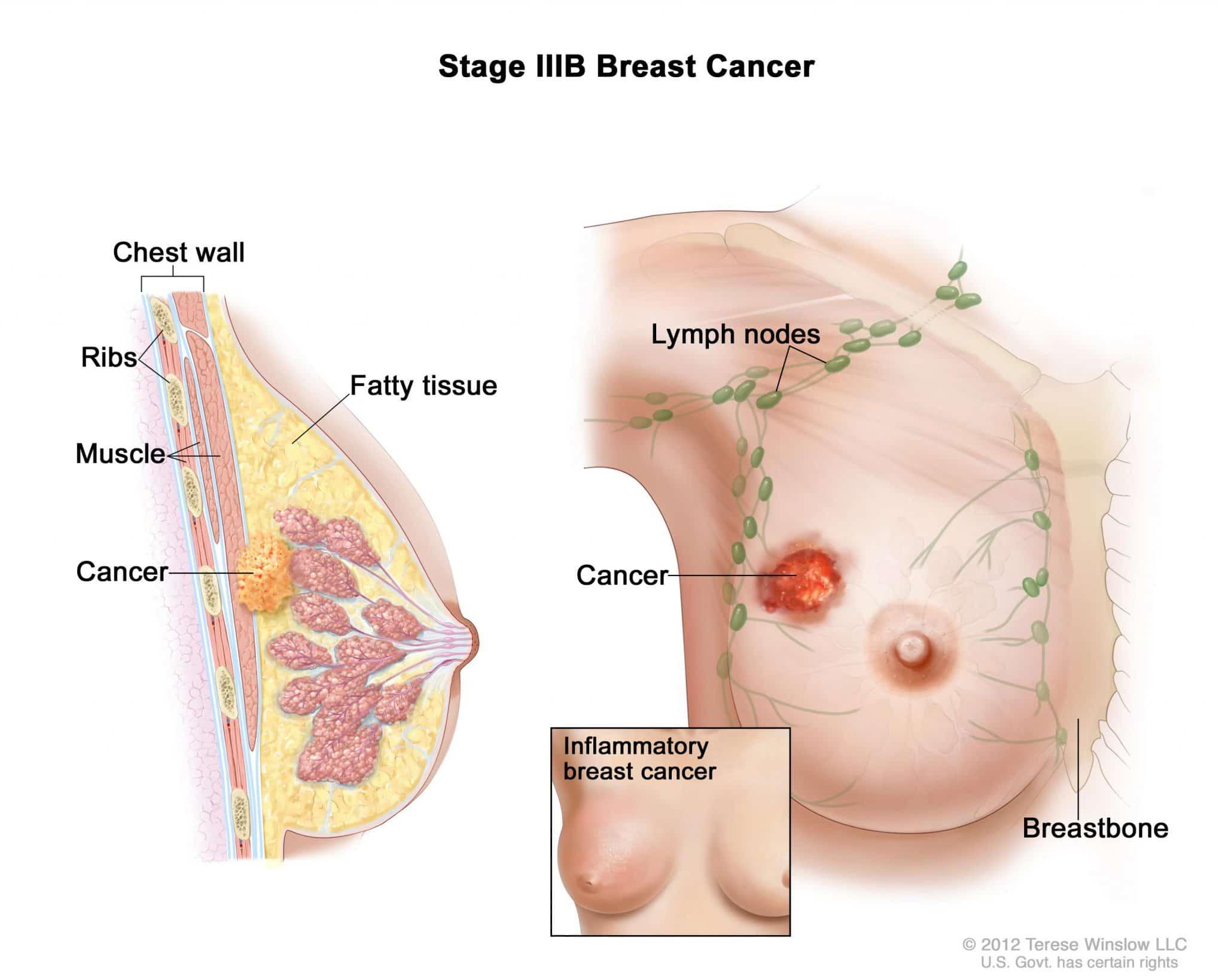 Kanker Payudara (Ca Mammae)