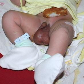 Hidrokel pada Bayi Baru Lahir (Hydroceles)