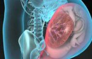 Perubahan Fisiologis Masa Nifas Pada Sistem Reproduksi (Bagian 2)