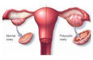 Gangguan dan Masalah Haid dalam Sistem Reproduksi