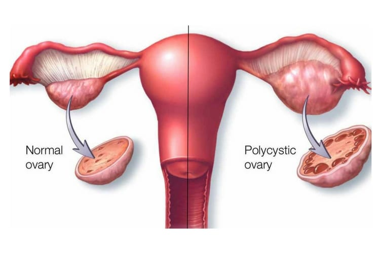 Gangguan Dan Masalah Haid Dalam Sistem Reproduksi Ginekologi Lusa